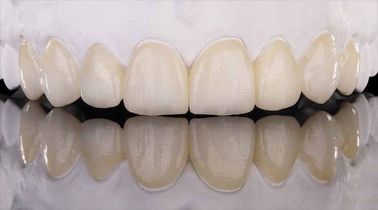 Minimally invasive full veneers made of Prettau® Anterior - by Michele Frapporti
