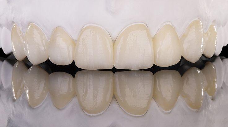 Minimally invasive full veneers made of Prettau® Anterior - by Michele Frapporti