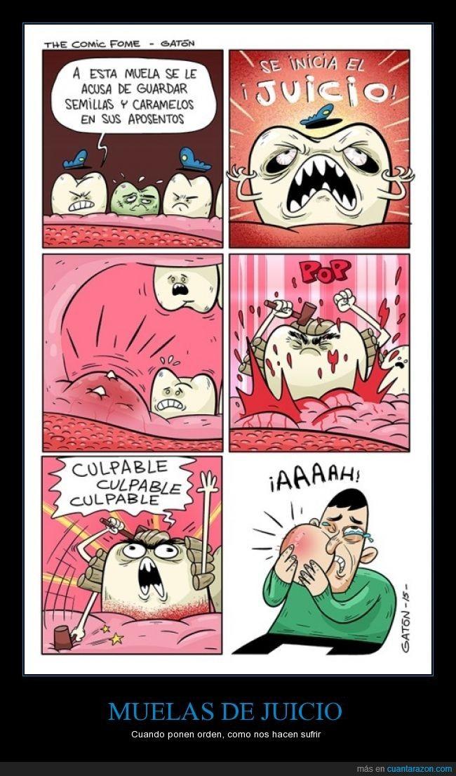 ¡Las muelas a juicio! #dental