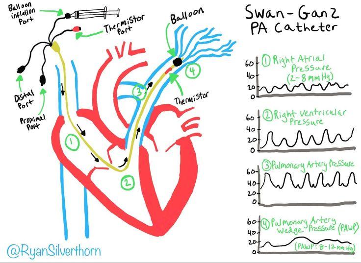 distal port of pulmonary artery catheter pawp Google