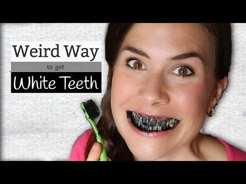 Activated Charcoal for white teeth