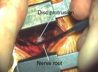 Best Chair After Spinal Surgery How To Make A Hanging Egg Lumbar Microdiscectomy | My Life In Pinterest Degenerative Disc Disease, And ...