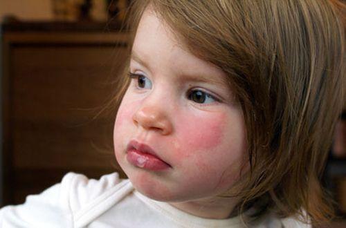 Egzama dikkat edilmesi gereken bir hastalıktır.