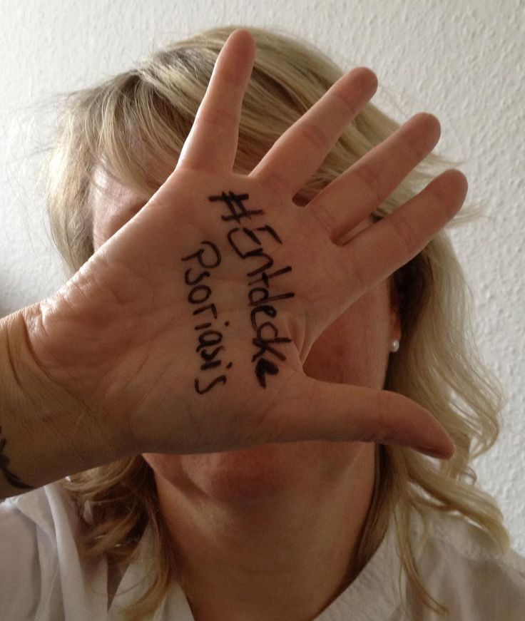 Unterstütze den  #WorldPsoriasisDay mit deinem #EntdeckePsoriasis-Foto! Hashtag auf die Haut malen.Fotografieren.Teilen. #Schuppenflechte #QualityCare #Juckreiz  #Psoriasis