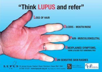 Useful reminder of features of #Lupus (Royal College of General Practitioners) • via @DrKnut on Twitter