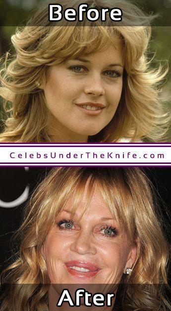 Melanie Griffith Cosmetic Surgery Photos #celebsundertheknife #celebs #celebrity #plasticsurgery #celebritysurgery