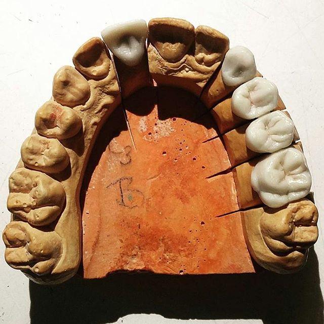 Wax-up case from @szandi_kr - #dentaltechnician #dentaltechnicianstudent #dentallab #waxup #zahn #zahntechnik #molar #premolar #dentalwork #gyakorlás #worklife #dentistry #dentisterie #dentistrylife #dentalschool #ucla #cda #estheticdentistry #sonrisa #smile #wax