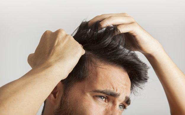 Erkeklerde Sacin Hizli Uzamasi Icin Ne Yapilmali Sac Dokulme Tedavileri Sac Dokulmesi Sac