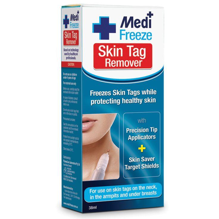 Medi Freeze Skin Tag Remover - Chemist Warehouse