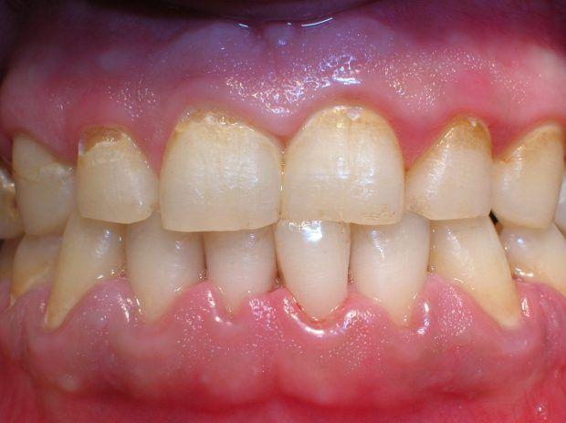 Este método eliminara el sarro de tus dientes en tan solo 6 minutos. ¡Sorprendente!