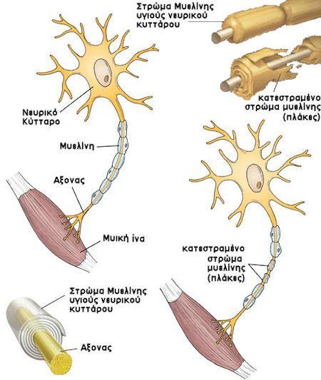 ΣΚΠ: Συμπτώματα - Σκλήρυνση κατά πλάκας