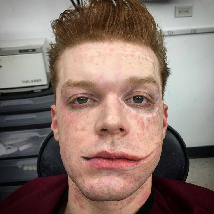 "camonaghantrash: ""Mike Maddi make up on Instagram While removing Cameron's makeup I thought this would make an interesting shot. Showing half his face still in makeup and how the prosthetics change Cameron's mouth and cheek to create Jerome's look. """