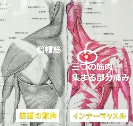 肩こり.首の痛み頭痛反復性ストレス障害パソコン等を使う更年期の治療は平塚市不動療整院 | 平塚市の整体院腰痛.坐骨神経痛.膝痛を再発ない治療の平塚不動療整院に