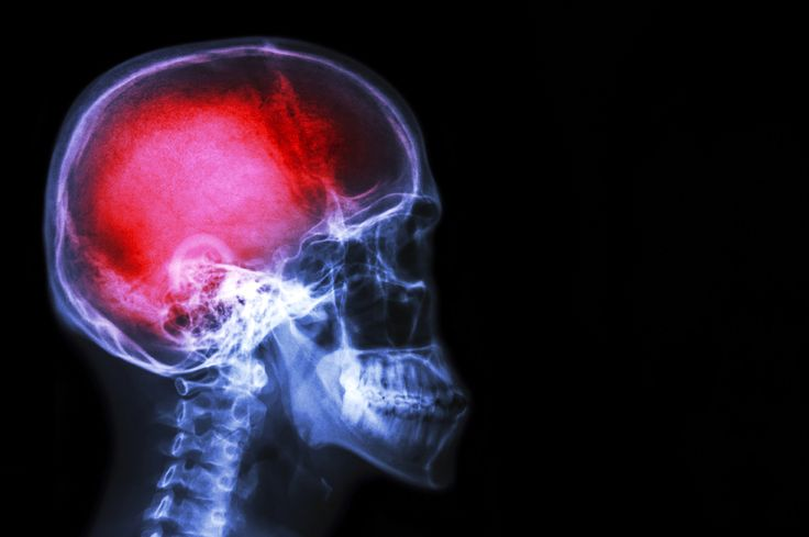 Good Read - Pain Really Is All In Your Head. Emotion Controls Intensity