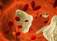 8 Tipps, Cholesterinwerte natürlich zu senken