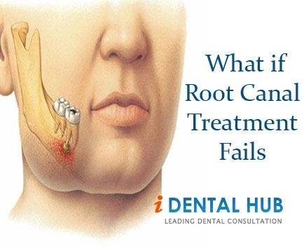 Know about the Causes of Failure of Root Canal Treatment