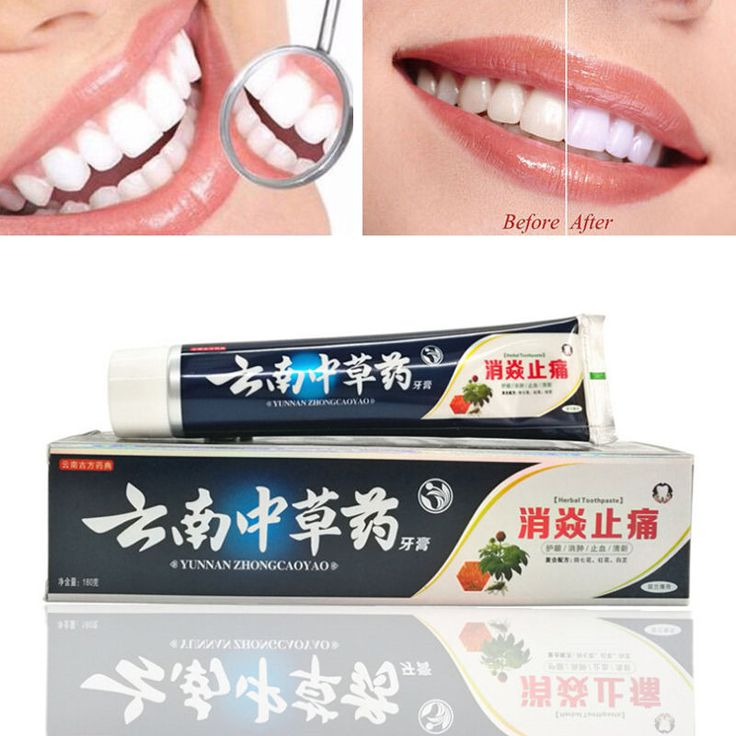 New Chinese medicine toothpaste flavor 180G relieving oral ulcer Holly bleeding gums sore whitening #Affiliate