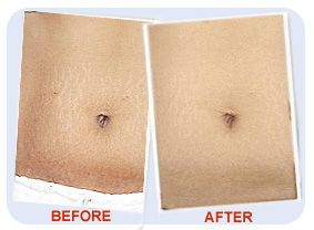 stretch marks before and after using stretchX , best stretch mark removal cream