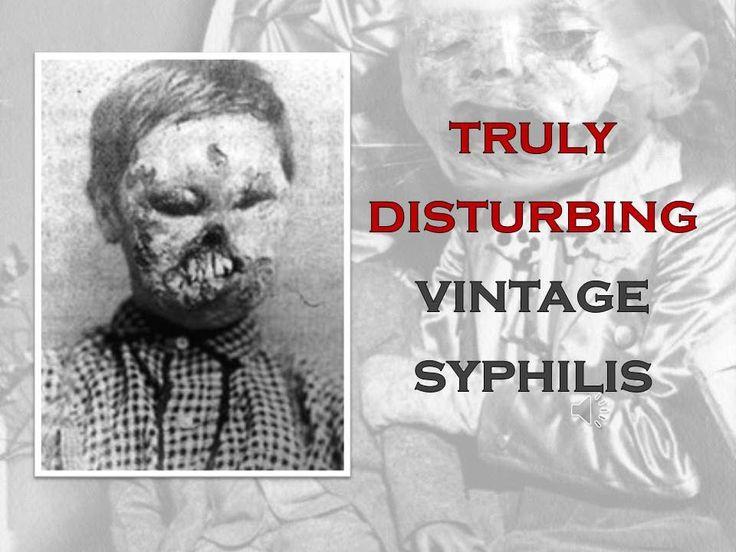 TRULY DISTURBING VINTAGE PHOTOS #7 SYPHILLIS