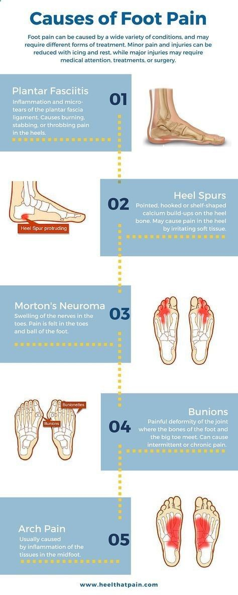 Foot pain chart: Do you know whats causing your foot pain? It may be one of a number of conditions: plantar fasciitis, heel spurs, bunions. Click to learn more about foot pain conditions.https://heelthatpain.com/heel-pain/heel-pain-causes/?utm_campaign=Foot%20Pain%20Infographic&utm_medium=Pin&utm_source=Pinterest