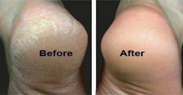HOW TO GET SILKY SMOOTH FEET WITH THIS SIMPLE BAKING SODA MIXTURE