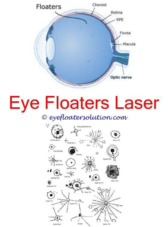 crohn's eye floaters worm eye floaters benign vitreous floaters eye