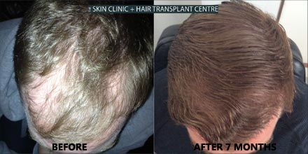 One more FUE Result of one of our patients.