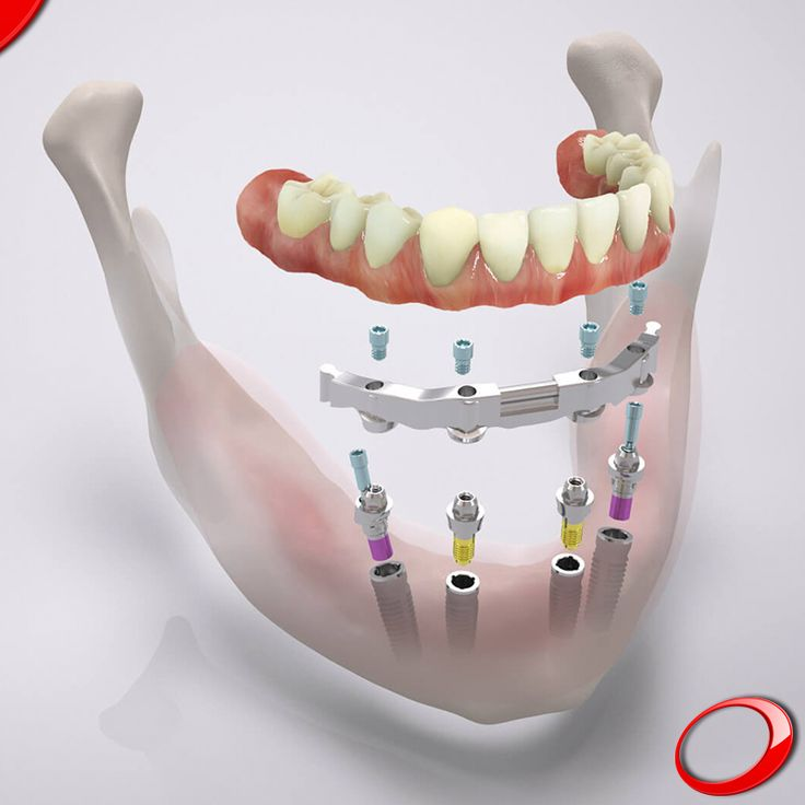 Just 4 implants to the Perfect Smile, can you imagine it? ........................... www.dinp.co.uk (For more info or to schedule a evaluation query, send your contacts by private message) #dentist#implants#smile#clinic#health#healthy#qualityoflife