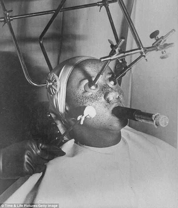 """Strange And Bizarre Beauty Treatments From The '30s and '40s: """"'Freezing' freckles off with carbon dioxide was popular in the Thirties. While it was applied, patients eyes were covered with airtight plugs and their nostrils filled in for protection. They had to breathe through a tube """" - via designtaxi.com"""