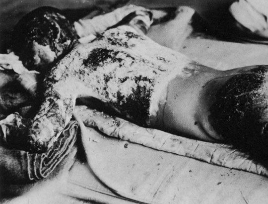 Hiroshima &  Nagasaki Remembered.  This soldier is severely burned from the thermal radiation.