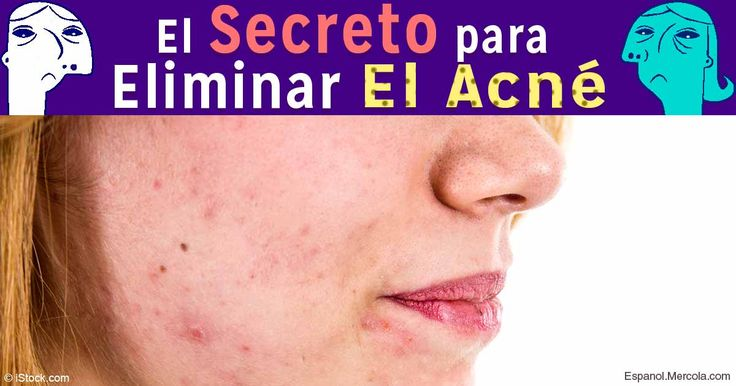 El tratamiento del acné sobre la persona a los hombres