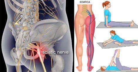 Con queste 7 semplici posizioni yoga è possibile avere un rimedio naturale per la sciatica (sciatalgia) alleviando il dolore al nervo sciatico naturalmente