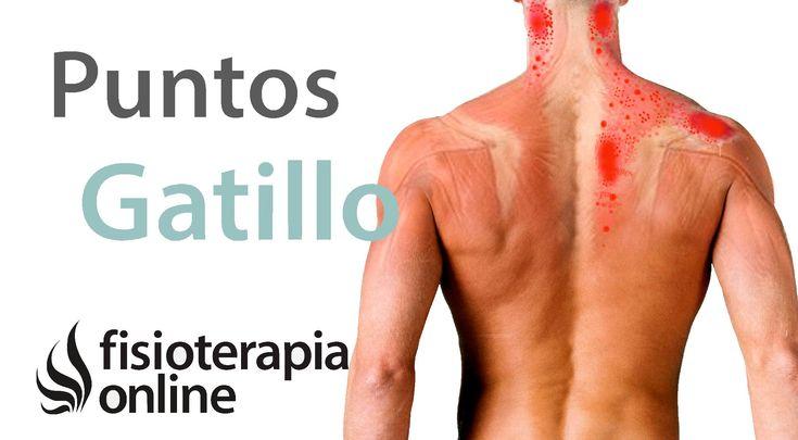 Qué son los puntos gatillo o síndrome de dolor miofascial y su tratamiento