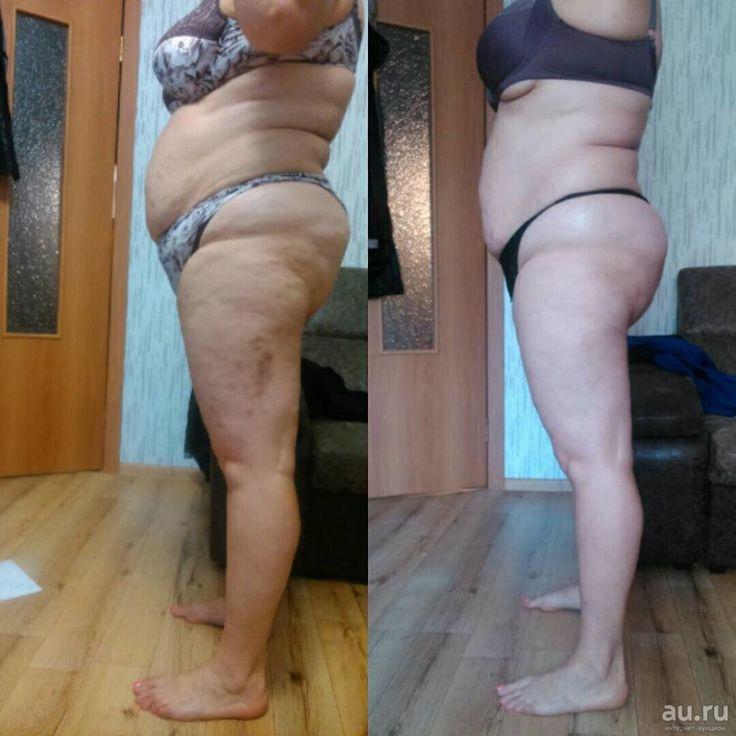 Отзывы похудение при массаже