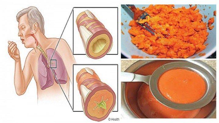 Trouxemos uma ótima receita que ajuda a eliminar o catarro e a tosse. Trata-se de um xarope feito com ingredientes naturais, bastante eficientes para cura. Além disso, esses