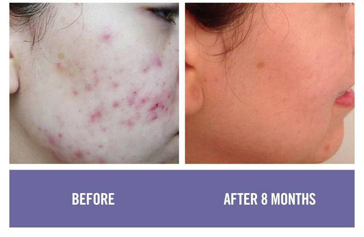 Unblemished before and after