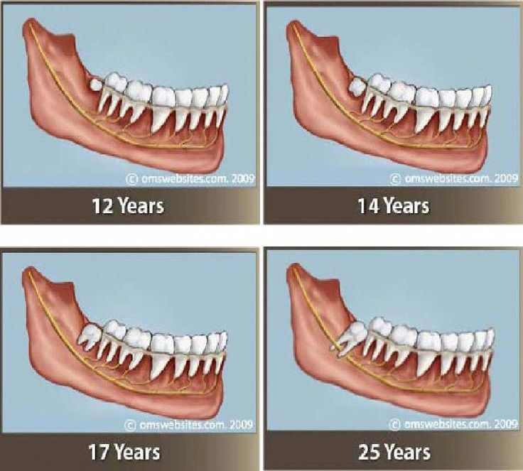 Brainy tooth decay remedies dentisttime