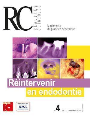 Preview Réintervenir en endodontie