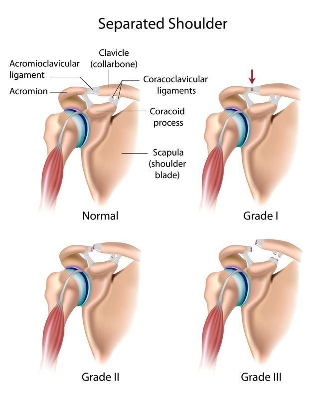Shoulder Separation (AC Joint Sprain, AC Joint Separation)