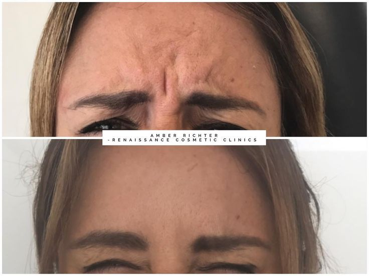 Targeting the frown with anti wrinkle injections to reduce dynamic lines. Client...