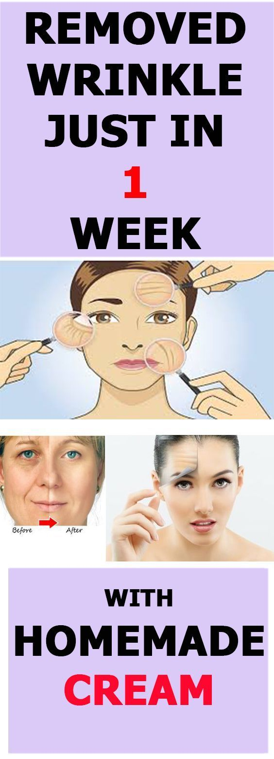 How to remove wrinkles | Remove all wrinkles with this homemade cream in just one week