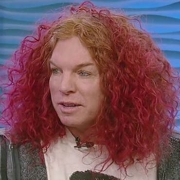 Carrot Top Plastic Surgery: Not So Funny Anymore
