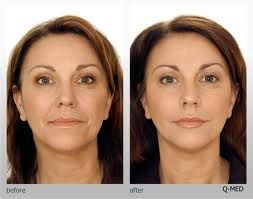 The product is made of Hyaluronic Acid and is mainly used for lip enhancement and to treat and smoothen wrinkles, nasobial folds, melomental folds and forehead wrinkles. We encorage our consumers to buy Restylane to rejuvenate their facial hollowsand orbital troughs and to correct the cheek volume, nose and forehead.