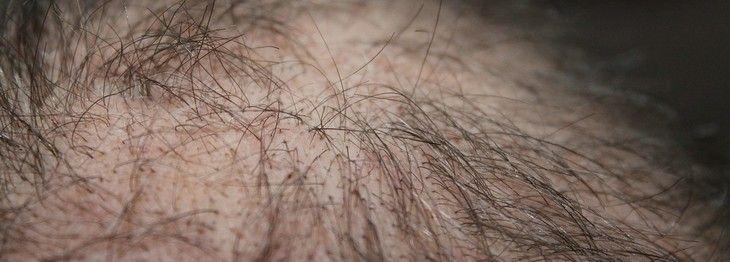 Use alecrim para acabar com os problemas de quedas de cabelo