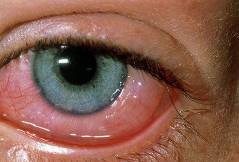 Are your eyes red and itchy? It could be allergies.