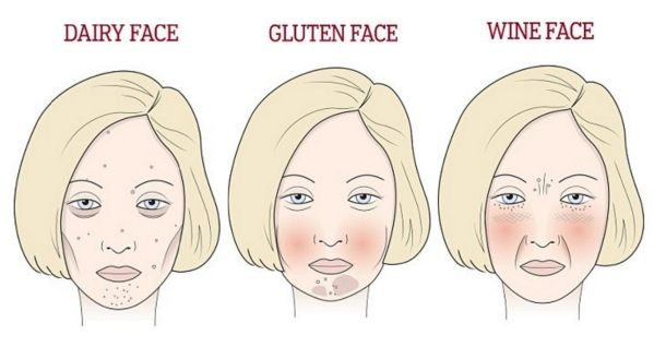 this is exactly what wine, gluten, and sugar do to your face