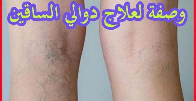 أطلب معلومات حول مرهم طبي لعلاج الدوالي في المغرب تخفيضات على مواقع البيع على الأنترنيت في المغرب