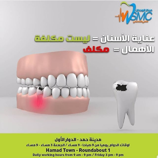 Esthitic Polishing Hollywoodsmile Trending Healthy Gum Kingdomofbahrain Art Passion Rootcanal Rct علاج عص Dental Services Root Canal Smile Makeover