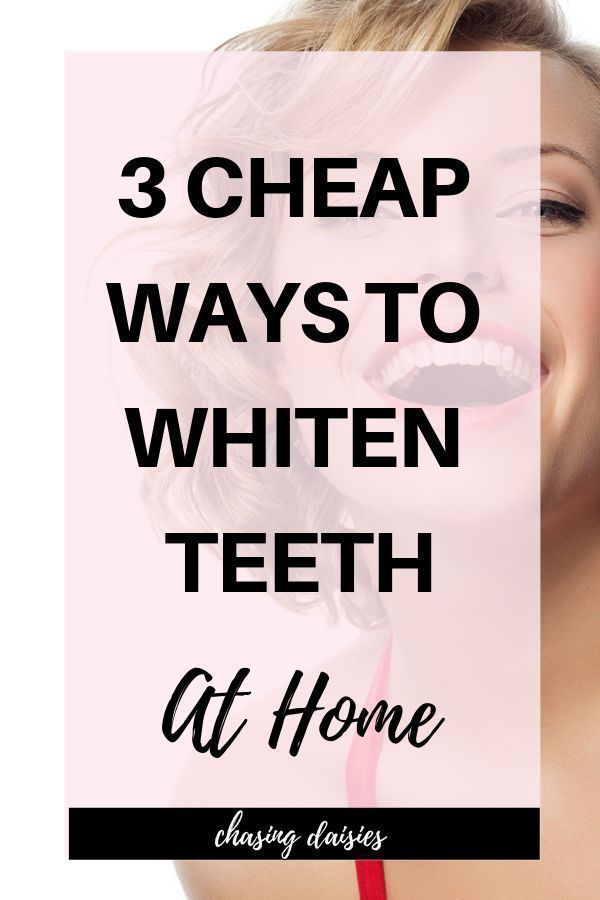 I'm all about home teeth whitening fast – who does…