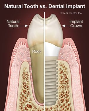 Dental implants are modern dentistry's best option for replacing missing teeth. They offer a highly successful, long-lasting, and totally na...